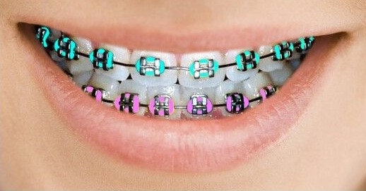 AlignBeauty-metal-braces